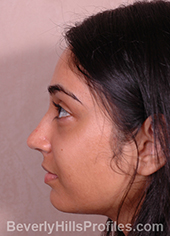 Young woman's face, after ethnic rhinoplasty treatment, left side view, patient 1