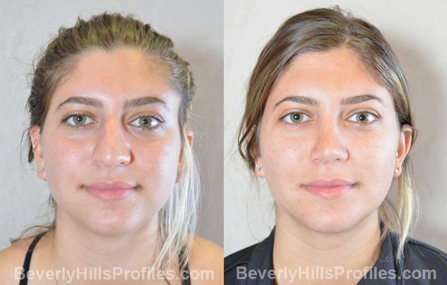 Female patient before and after Nose Surgery, front view