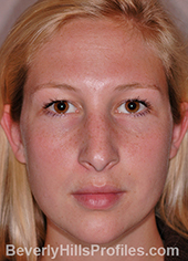 Young woman's face, before hanging columella treatment, front view