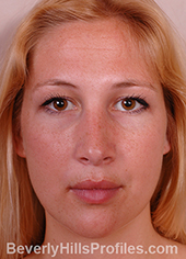 Young woman's face, after hanging columella treatment, front view
