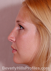 Young woman's face, after hanging columella treatment, left side view