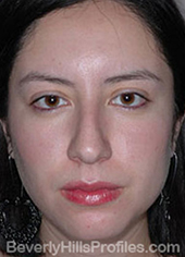 Female face, before Hispanic rhinoplasty treatment, front view, patient 1