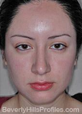 Female face, after Hispanic rhinoplasty treatment, front view, patient 1