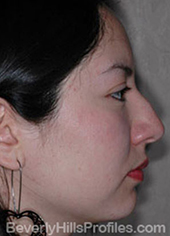 Female face, before Hispanic rhinoplasty treatment, right side view, patient 1