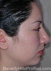 Female face, after Hispanic rhinoplasty treatment, right side view, patient 1
