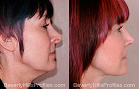 Woman's face, Before and After Photos. Neck Liposuction. Female - right side view