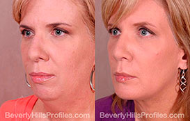 Woman's face, Before and After Photos. Neck Liposuction. Female - left side view, patient 2