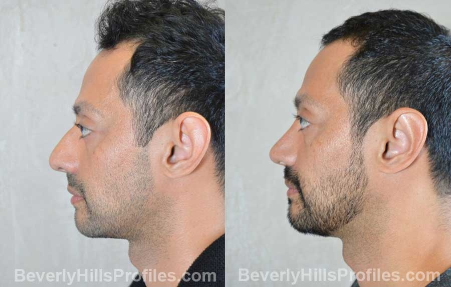 Male patient before and after Nose Surgery, front view