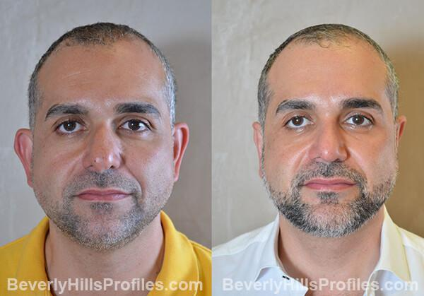 pics male patient before and after Necklift - front view