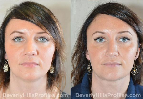front view pic before and after Necklift Procedures