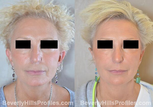female patient before and after Otoplasty Procedures