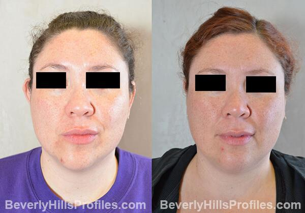 photos female patient before and after Otoplasty Procedures