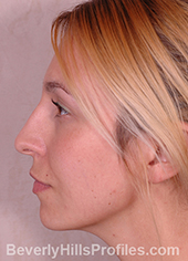 Young woman's face before Retracted Columella treatment, left side view