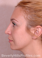 Young woman's face after Retracted Columella treatment, left side view