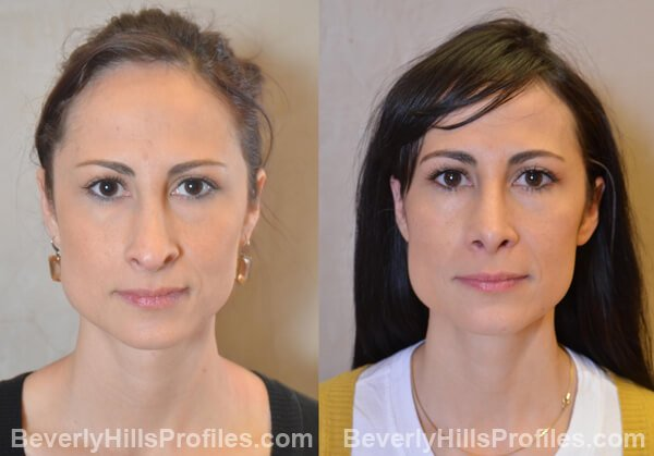 Revision Rhinoplasty Before and After Photo Gallery - front view, female patient 32