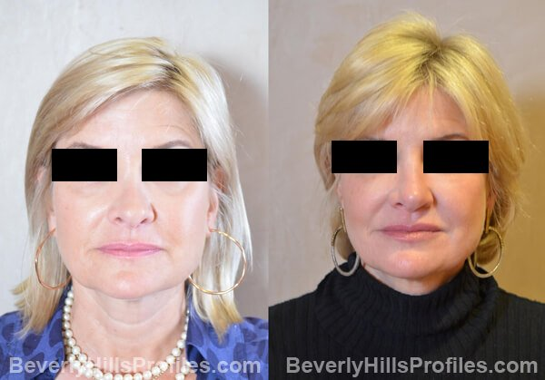 Revision Rhinoplasty Before and After Photo Gallery - front view, female patient 33