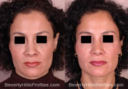 Revision Rhinoplasty Before and After Photo Gallery - front view, female patient 12