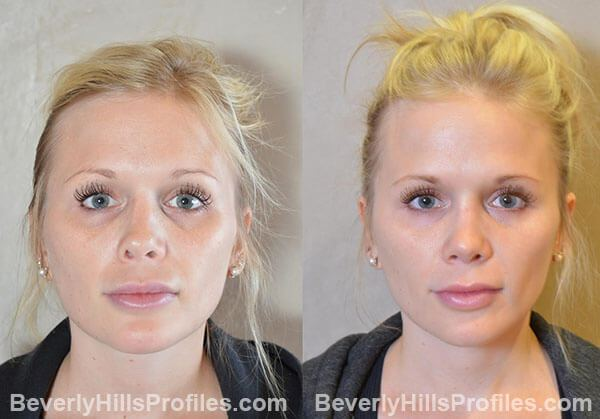Revision Rhinoplasty Before and After Photo Gallery - front view, female patient 35