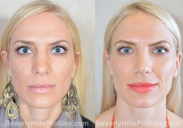 Revision Rhinoplasty Before and After Photo Gallery - front view, female patient 7