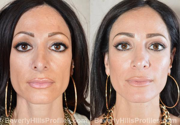 Revision Rhinoplasty Before and After Photo Gallery - front view, female patient 8