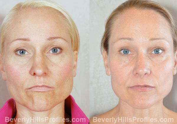 Revision Rhinoplasty Before and After Photo Gallery - front view, female patient 10