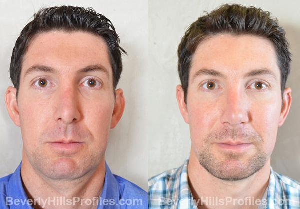 Revision Rhinoplasty Before and After Photo Gallery - front view, male patient 28