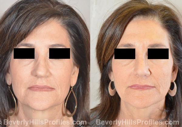Revision Rhinoplasty Before and After Photo Gallery - front view, female patient 29