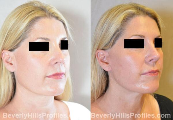 Revision Rhinoplasty Before and After Photo Gallery - front view, female patient 30