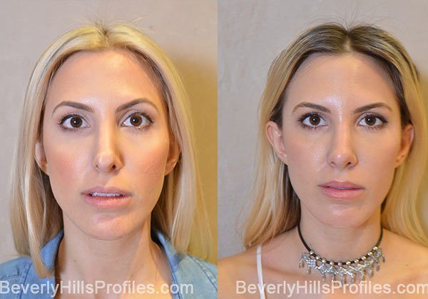 Revision Rhinoplasty Before and After Photo Gallery - front view, female patient 9
