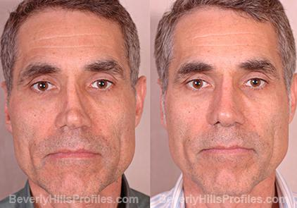Revision Rhinoplasty Before and After Photo Gallery - front view, male patient 5