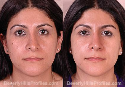 Revision Rhinoplasty Before and After Photo Gallery - front view, female patient 15