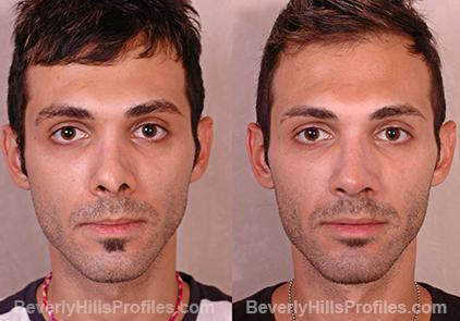 Revision Rhinoplasty Before and After Photo Gallery - front view, male patient 3