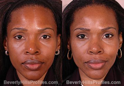 Revision Rhinoplasty Before and After Photo Gallery - front view, female patient 17
