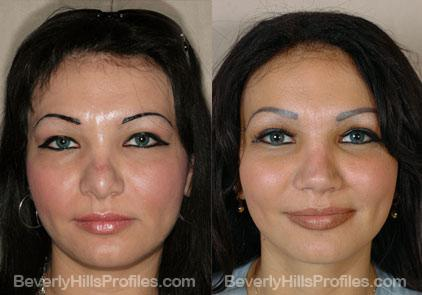 Revision Rhinoplasty Before and After Photo Gallery - front view, female patient 6