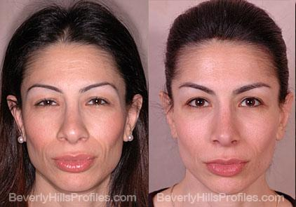 Revision Rhinoplasty Before and After Photo Gallery - front view, female patient 14