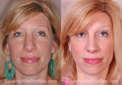 Revision Rhinoplasty Before and After Photo Gallery - front view, female patient 16