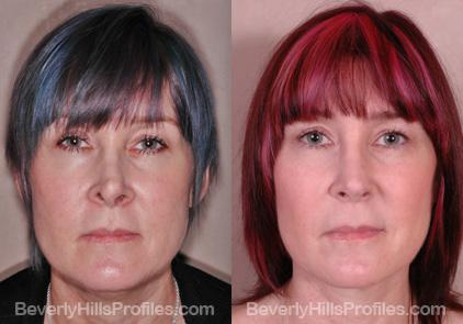 Revision Rhinoplasty Before and After Photo Gallery - front view, female patient 1