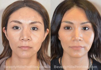 Revision Rhinoplasty Before and After Photo Gallery - front view, female patient 26