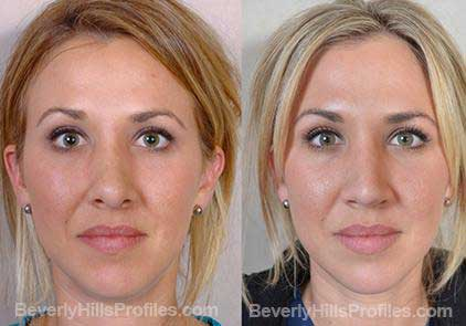 Images Female patient before and after Revision Nose Job
