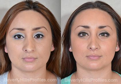 Revision Rhinoplasty Before and After Photo Gallery - front view, female patient 21