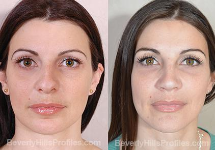 Revision Rhinoplasty Before and After Photo Gallery - front view, female patient 22