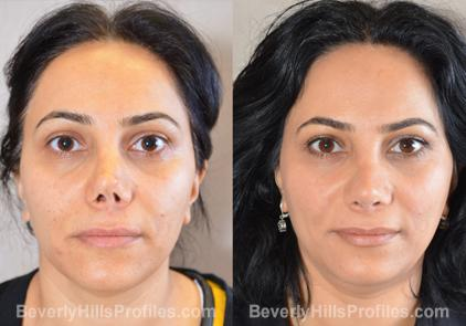Revision Rhinoplasty Before and After Photo Gallery - front view, female patient 4