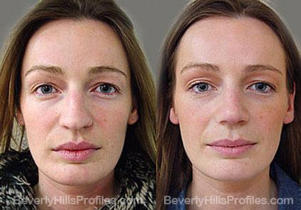 Revision Rhinoplasty Before and After Photo Gallery - front view, female patient 18