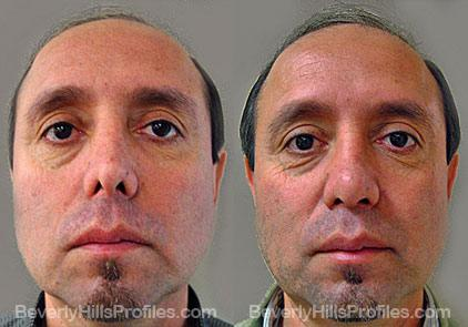 Revision Rhinoplasty Before and After Photo Gallery - front view, male patient 25