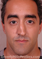 Male face, before Functional Rhinoplasty treatment, front view