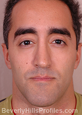 Male face, after Functional Rhinoplasty treatment, front view
