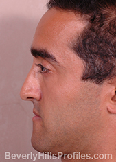 Male face, before Functional Rhinoplasty treatment, left side view