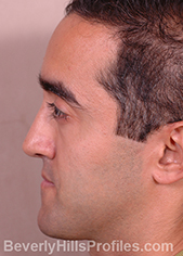 Male face, after Functional Rhinoplasty treatment, left side view