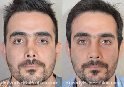 Revision Rhinoplasty Before and After Photo Gallery - front view, male patient 2