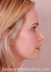 Young woman's face - after rhinoplasty treatment, right side view, patient 1